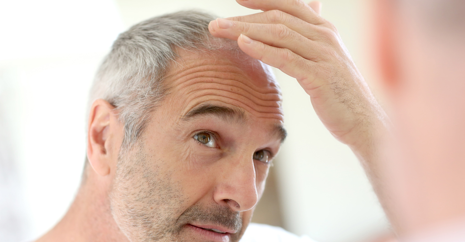 When Is The Right Time For A Hair Transplant in NJ?