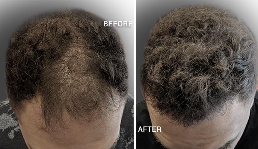 Hair Transplant Treatment
